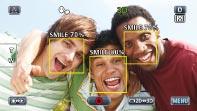 Smile-Messung & Smile-Aufnahme